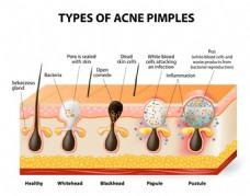皮肤结构图矢量材料